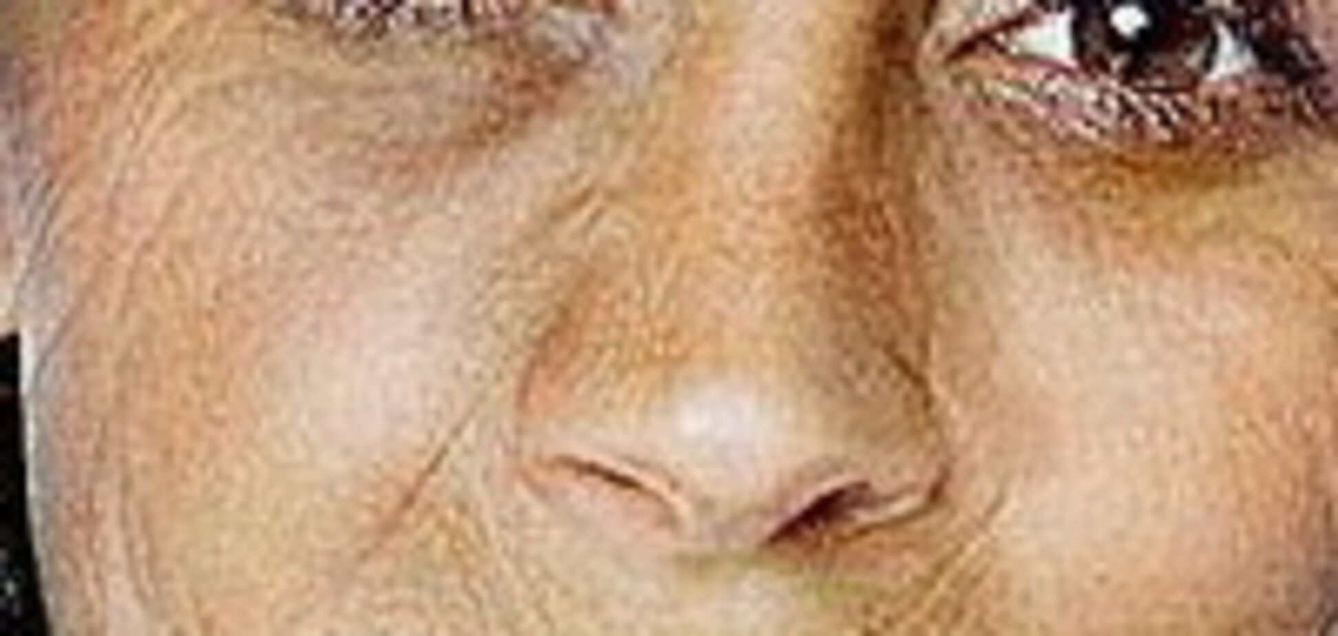Прыщи Дженнифер Лопез и сопли Холли Берри