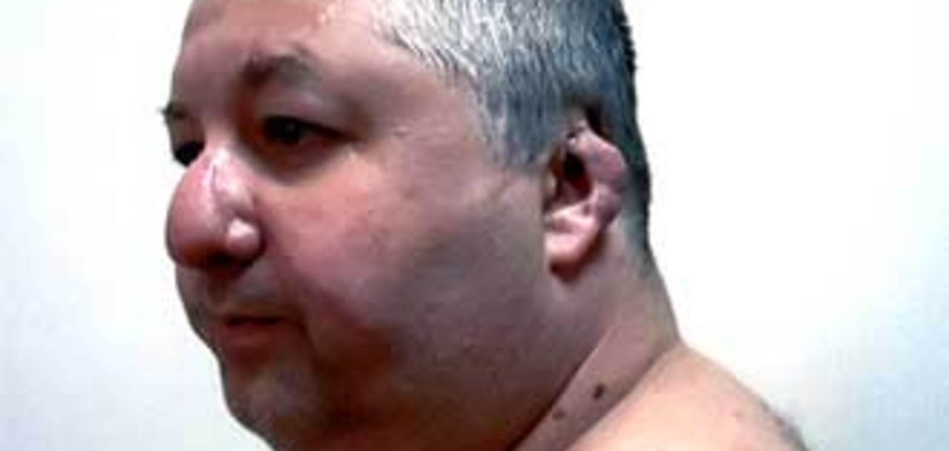 Изуродованный депутат-регионал обвиняет Гепу в коррупции
