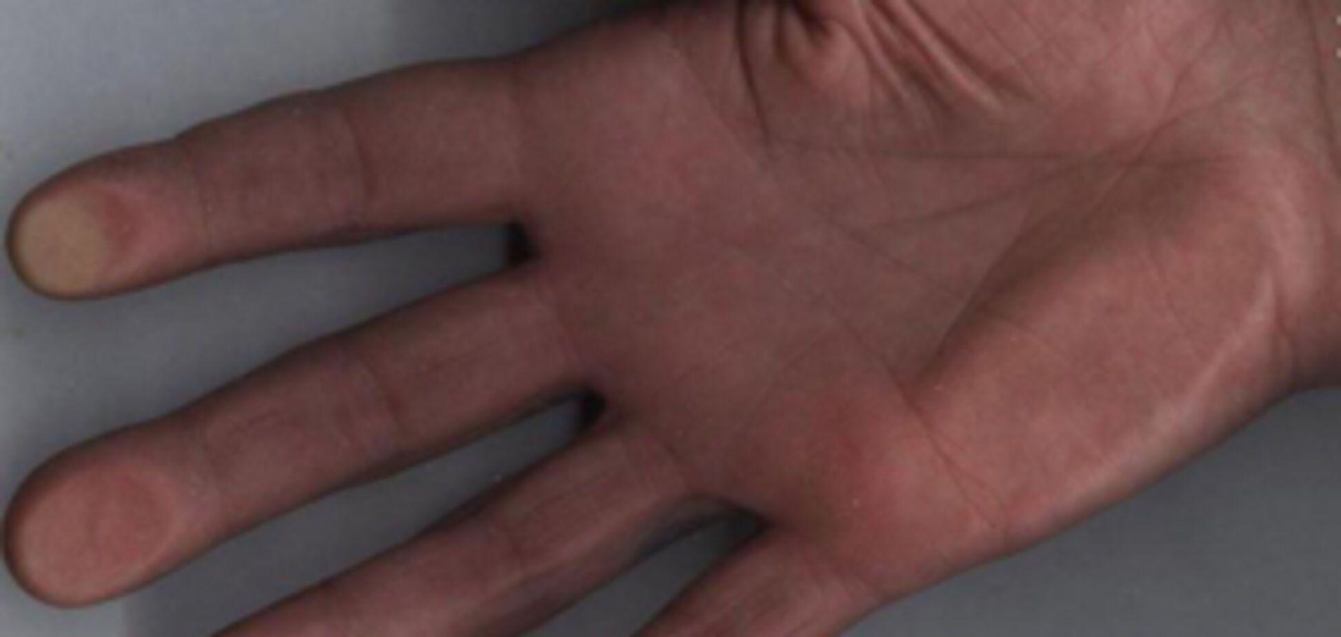 Чоловік вимагає від міліції 10 млн грн за відірвану руку