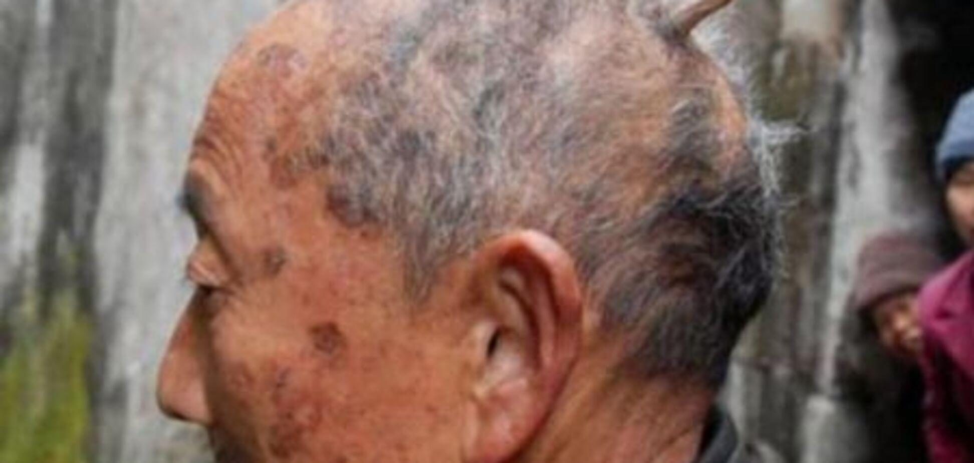 У китайца на голове вырос 8-сантиметровый рог. ФОТО