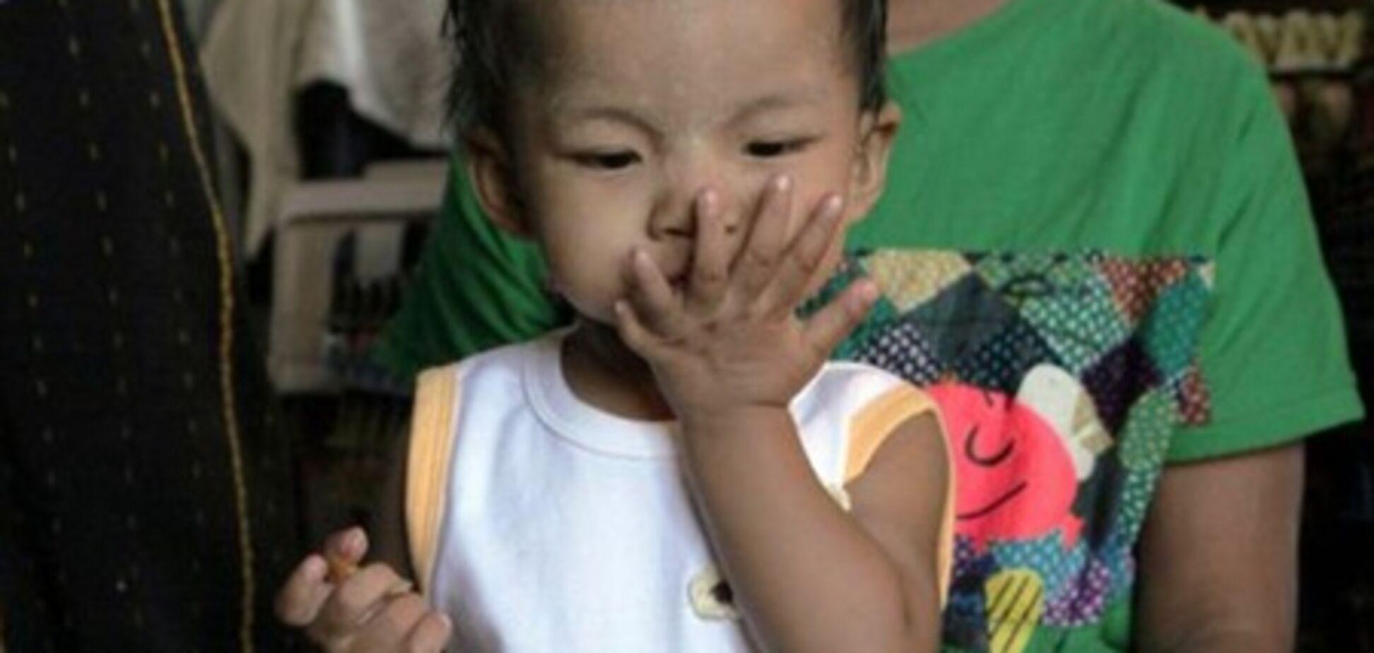 Маленькая девочка живет с 26 пальцами