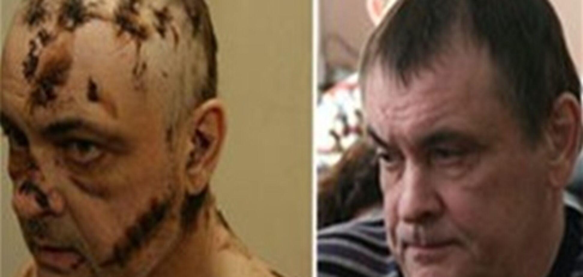 За 126 ударів сокирою по чоловікові жінку не посадили до в'язниці