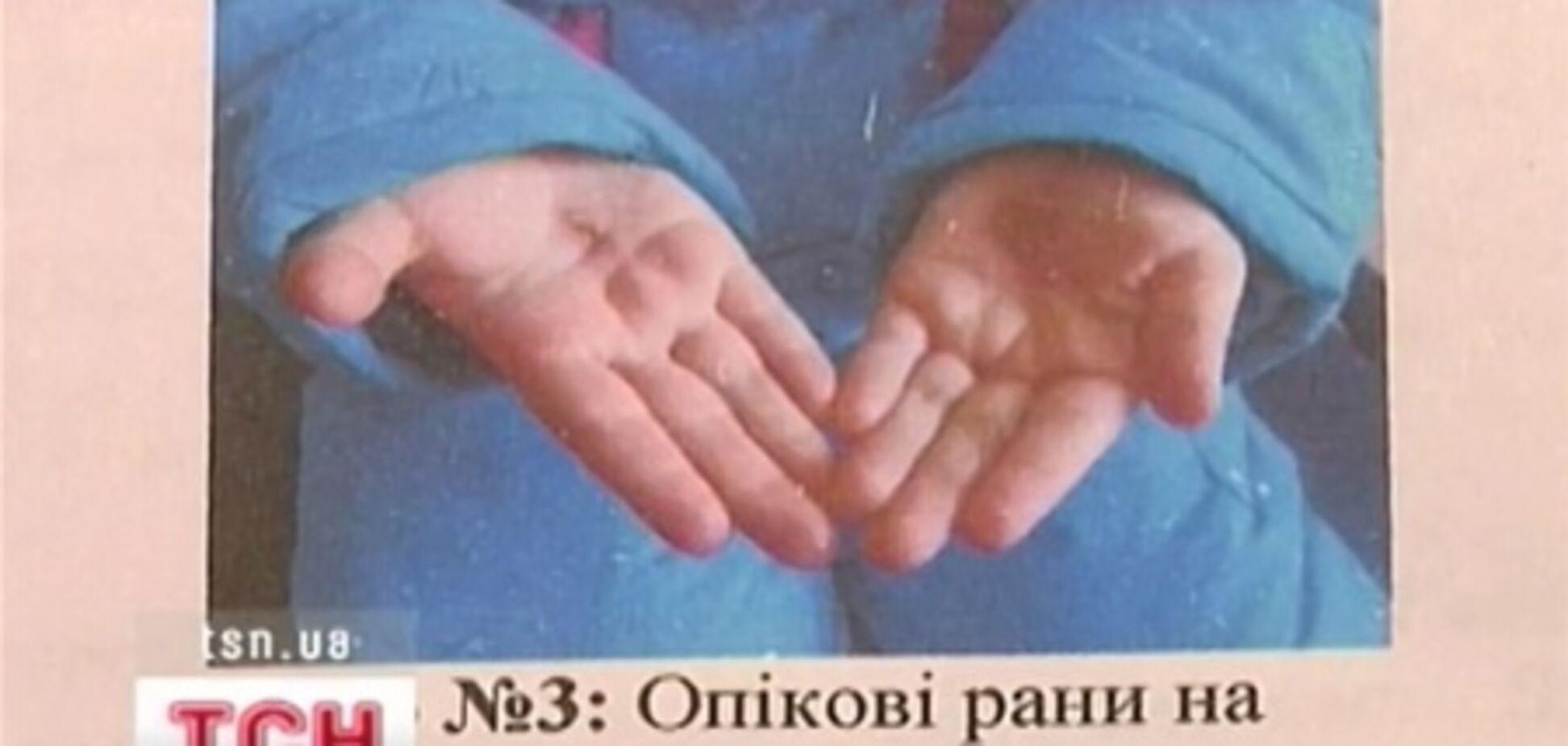 На Дніпропетровщині прийомна матір катувала дітей розпеченим залізом