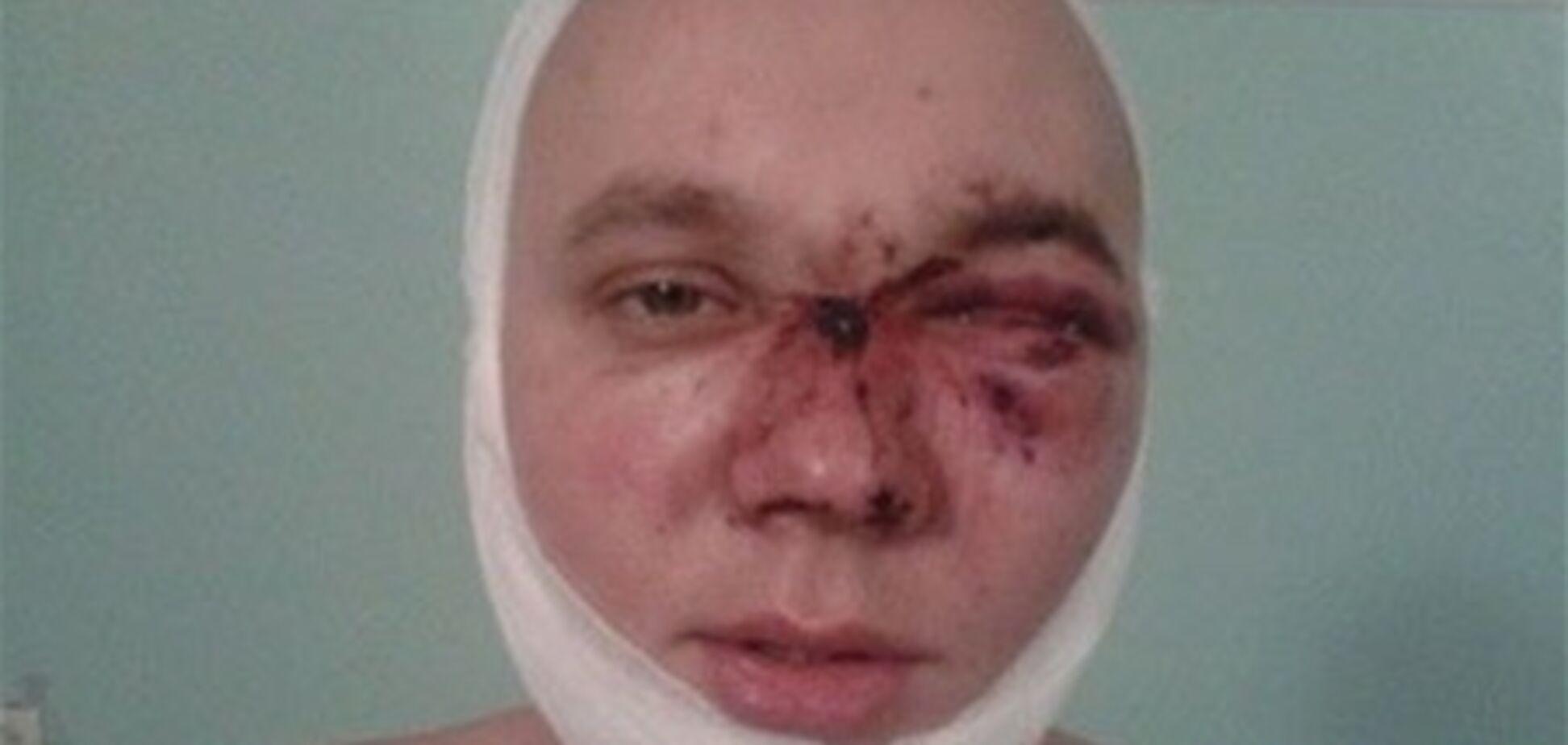 У нічному клубі Кривого Рогу охоронці жорстоко побили відвідувача
