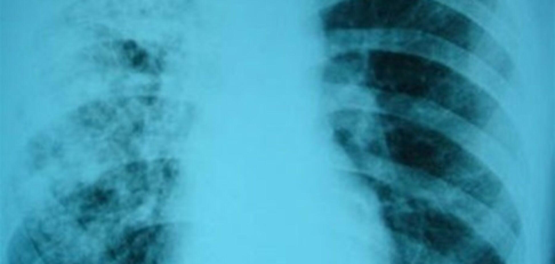 Как остановить эпидемию туберкулеза