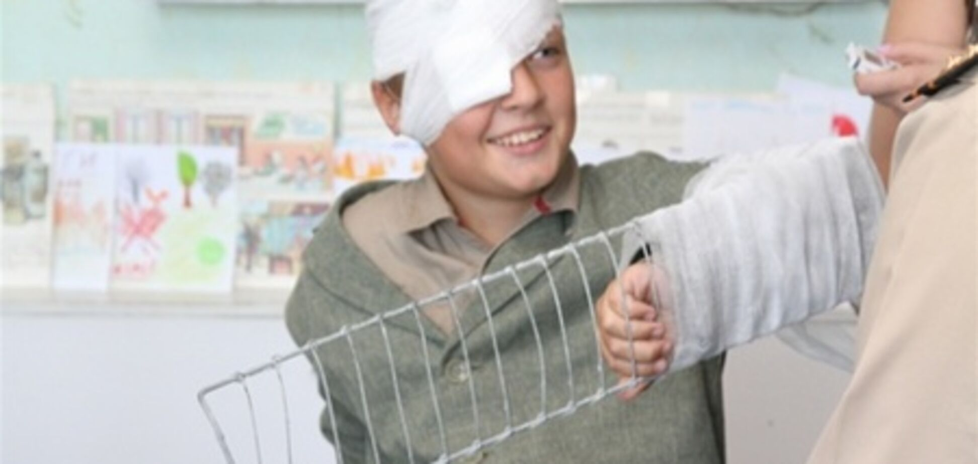 На Киевщине взорвалось неизвестное вещество: пострадали трое детей