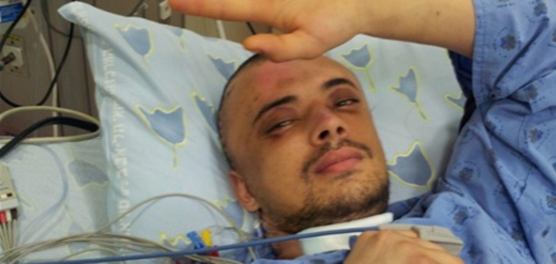 Еврейский студент, жестоко избитый в центре Киева, пришел в себя