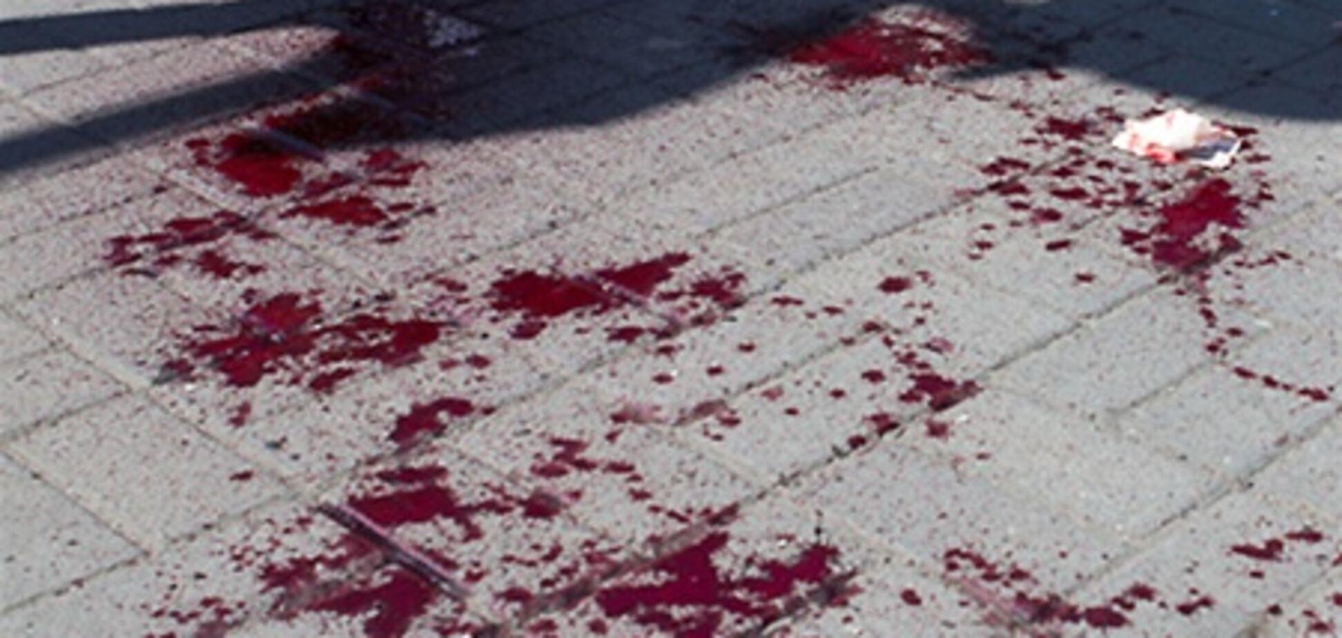Теракты в Днепропетровске: уже 27 пострадавших