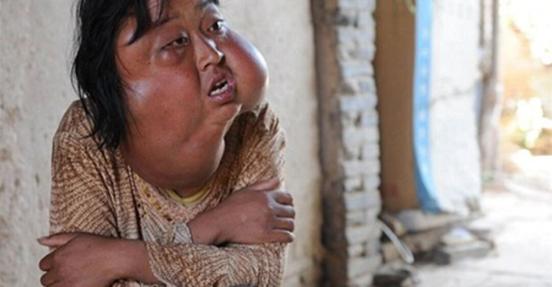 Take abath disfigured by facial
