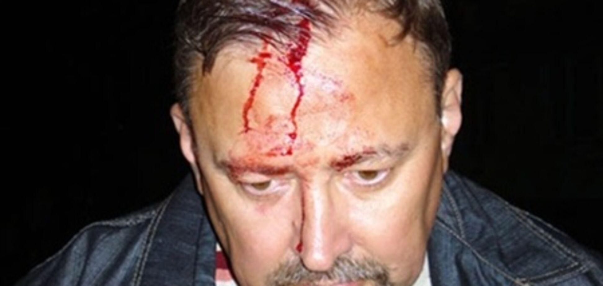 Напад на голову штабу на Луганщині: міліція проводить перевірку