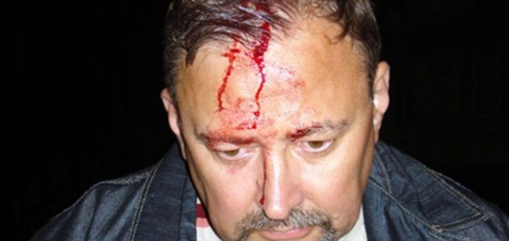 На Луганщине пытались убить главу штаба кандидата в нардепы