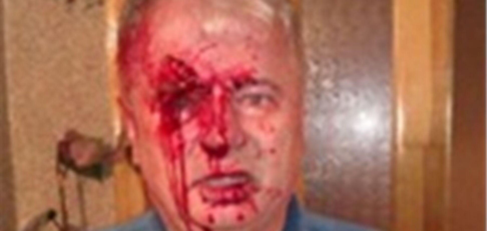 На Тернопольщине жестоко избили кандидата от 'Нашей Украины'