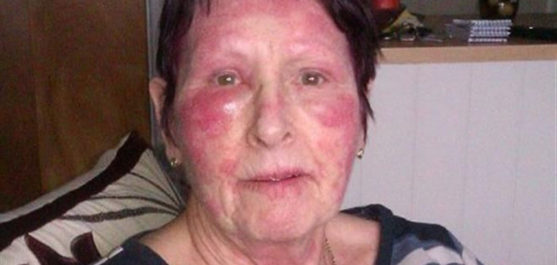 Крем от морщин L'Oreal изуродовал женщине лицо
