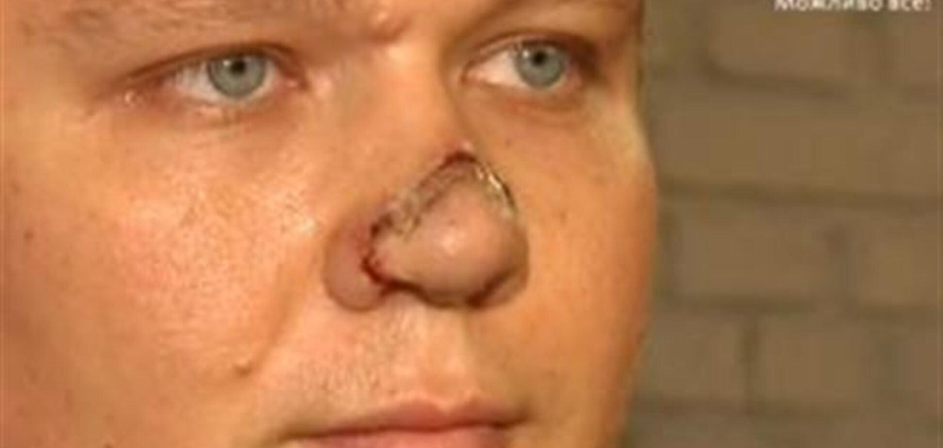 В Киеве 'помощник нардепа' откусил нос известному переводчику
