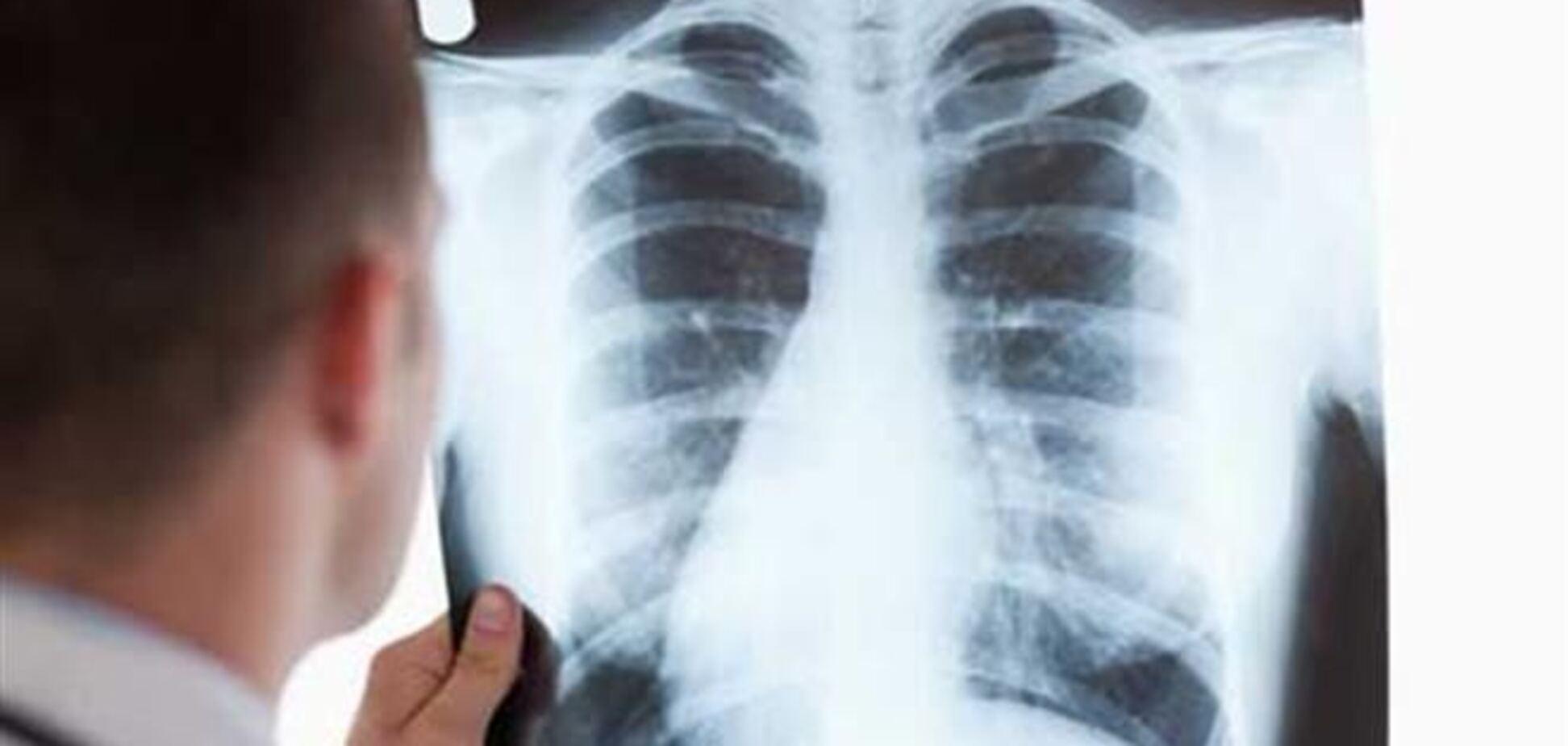 Туберкулез в 2012 году убил 1,3 млн человек