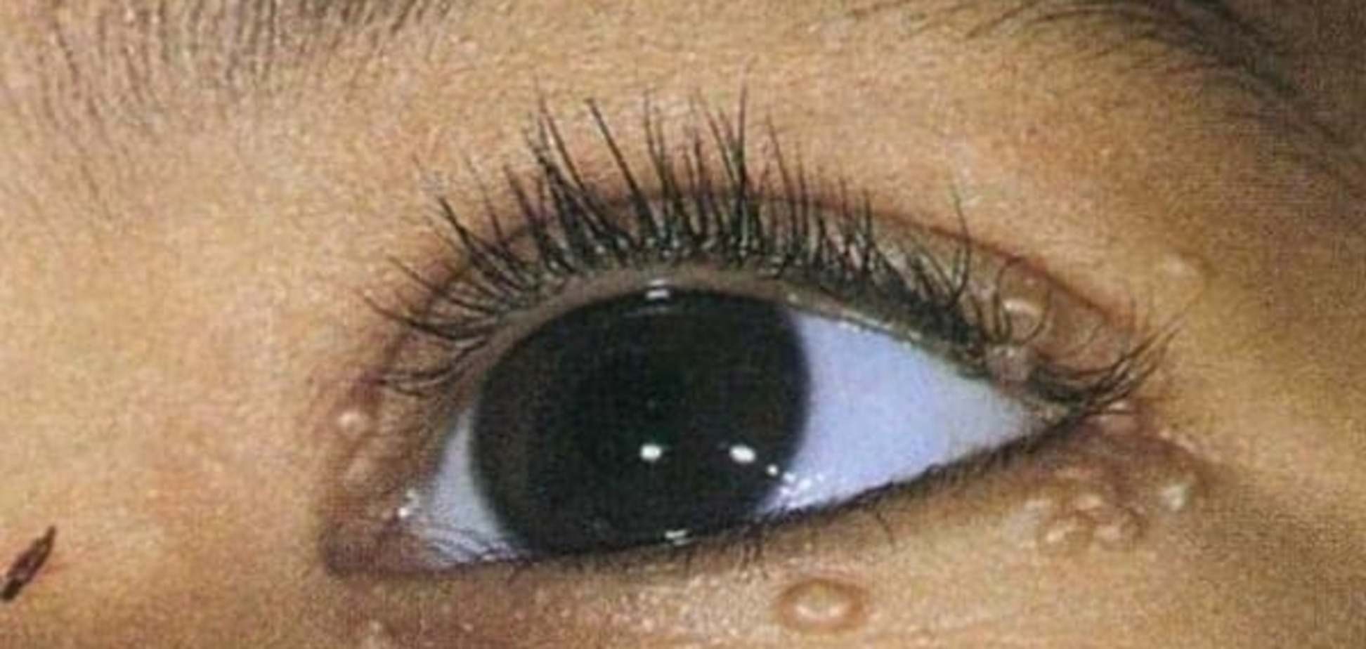 Контагиозный или контактный моллюск