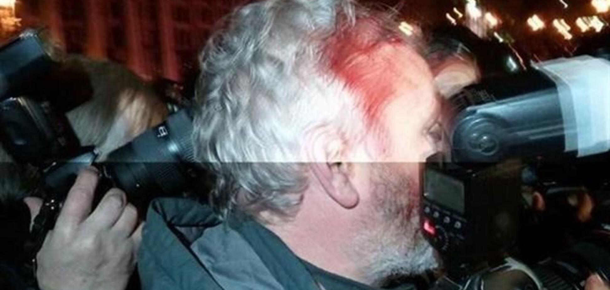 Журналисту Reuters разбили голову на Майдане