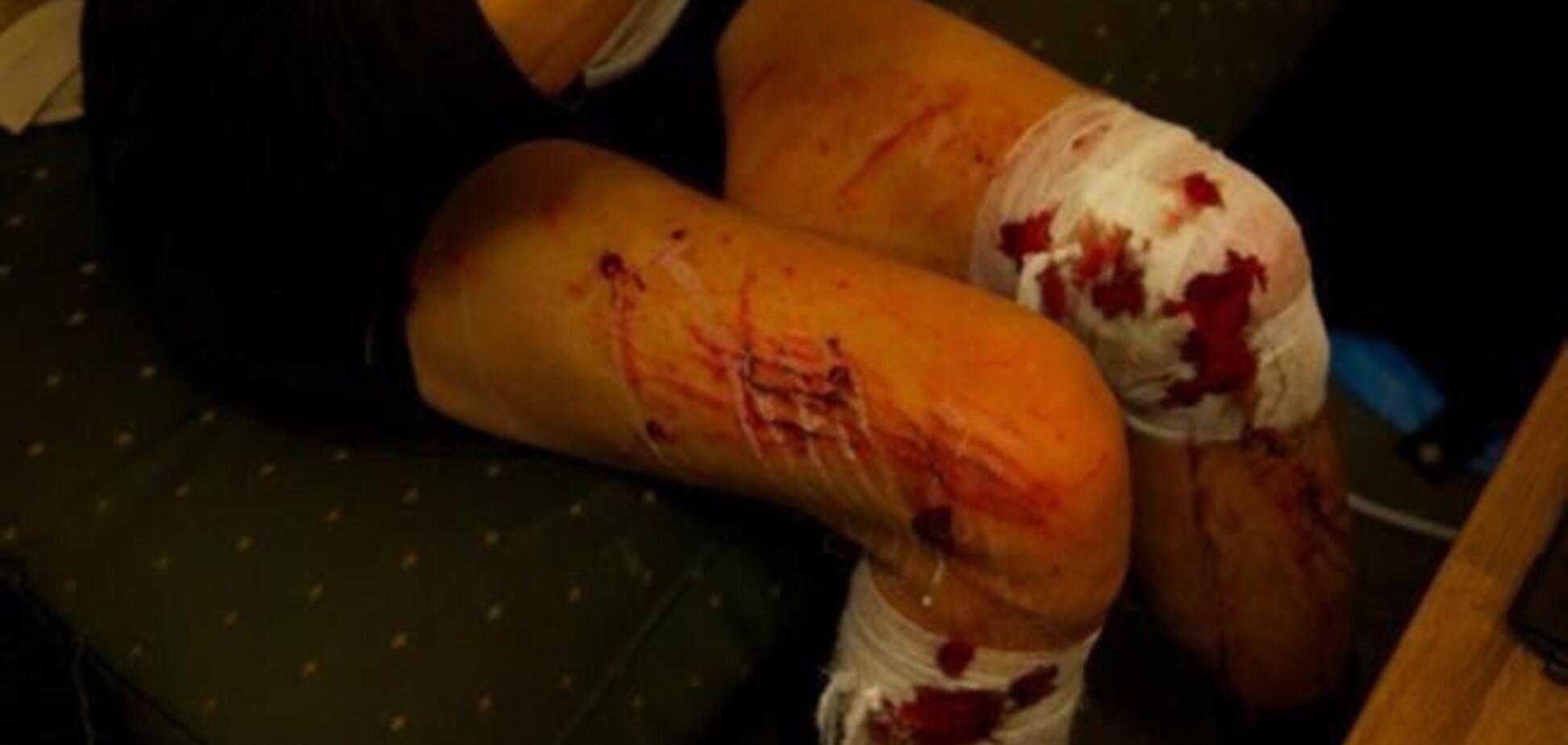 От столкновений с 'Беркутом' пострадали более 300 евромайдановцев