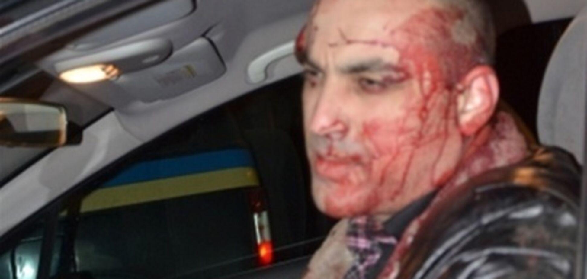 В Виннице избили главреда газеты