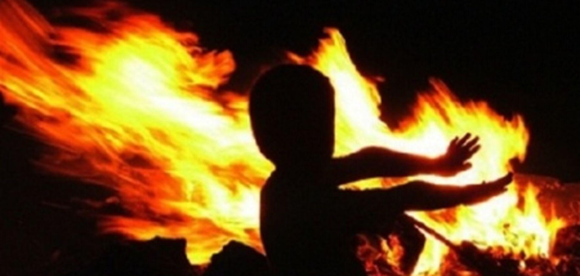 На Вінниччині дитина обпік обличчя, граючи з бензином