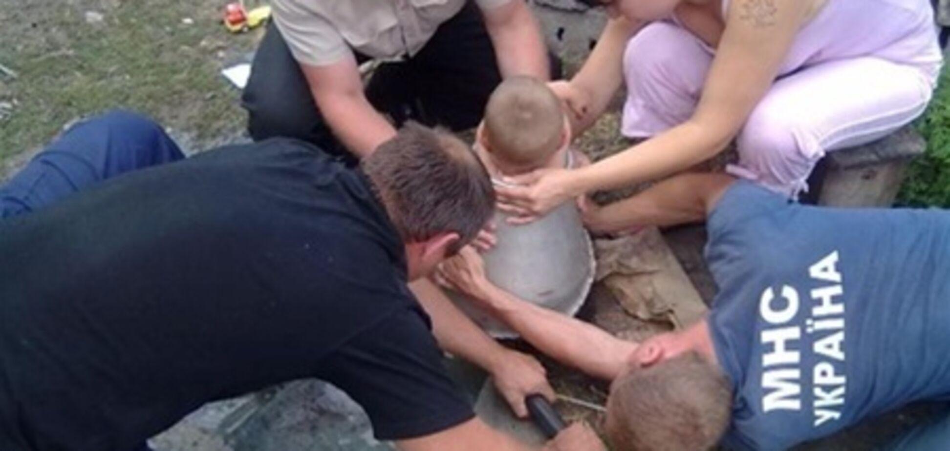 На Харьковщине малыш застрял в бидоне