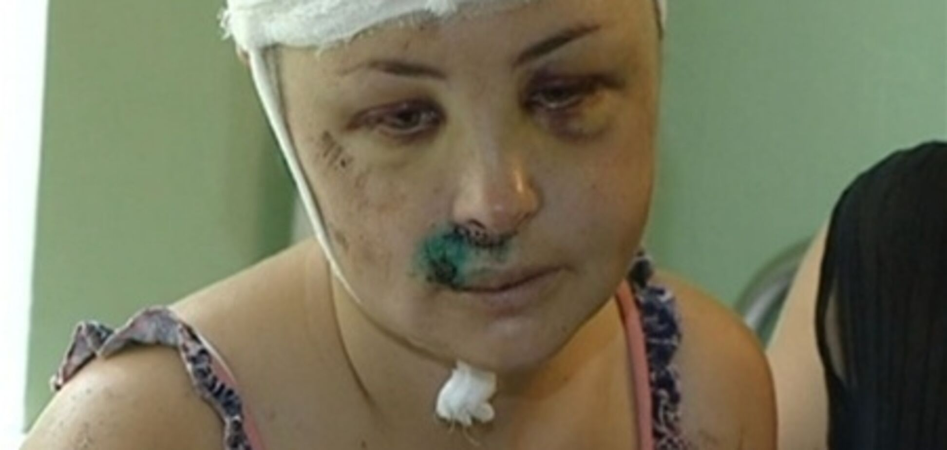 Жертву гвалтівників у Врадіївці охороняє спецпідрозділ СБУ