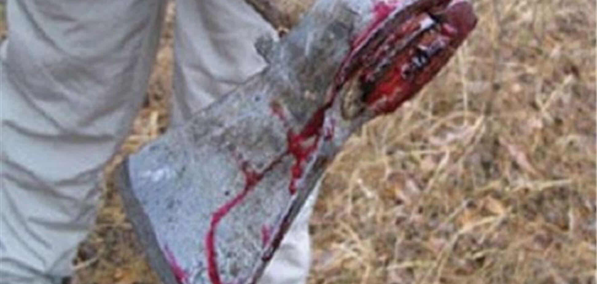 В Одесі чоловік у п'яній сварці відрубав сокирою руку товаришеві