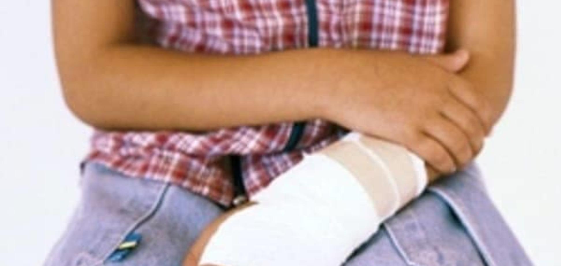 Уход за кожей под гипсовой повязкой
