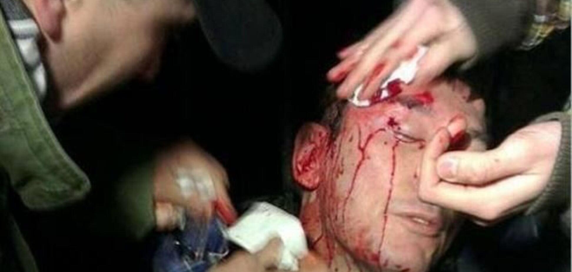 Луценко разбили голову в драке с 'Беркутом'