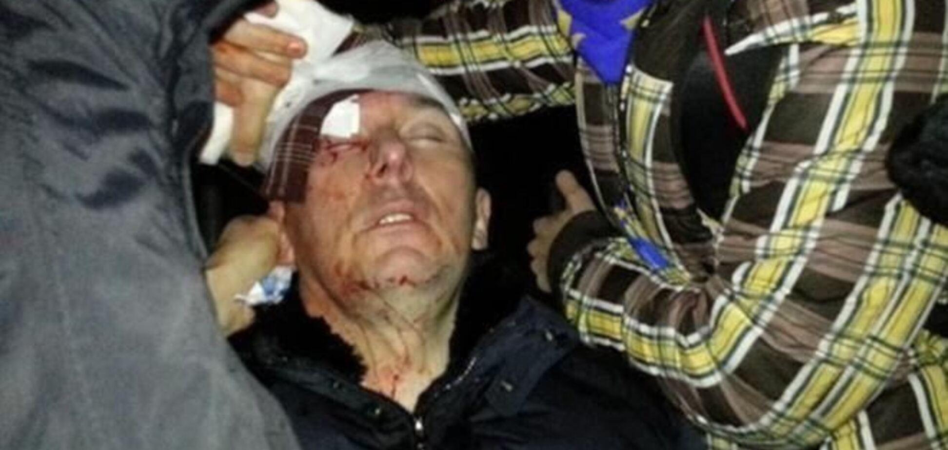 У Луценка немає серйозних травм, проте він знаходиться в реанімації - дружина екс-міністра