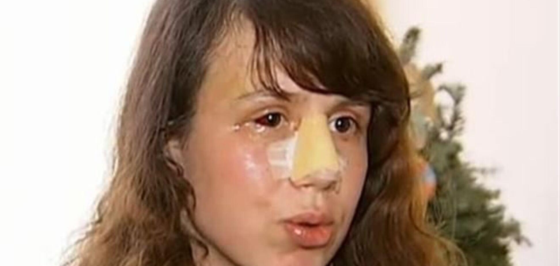 Чорновил считает, что ее избили из-за Януковича