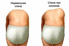Здоровий хребет у дітей