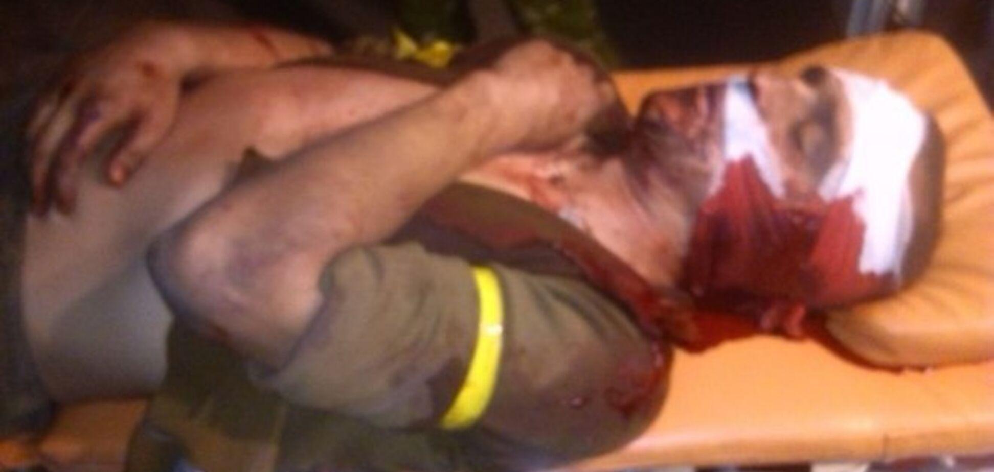 Террористы в Счастье взяли в плен бойцов 'Айдара'