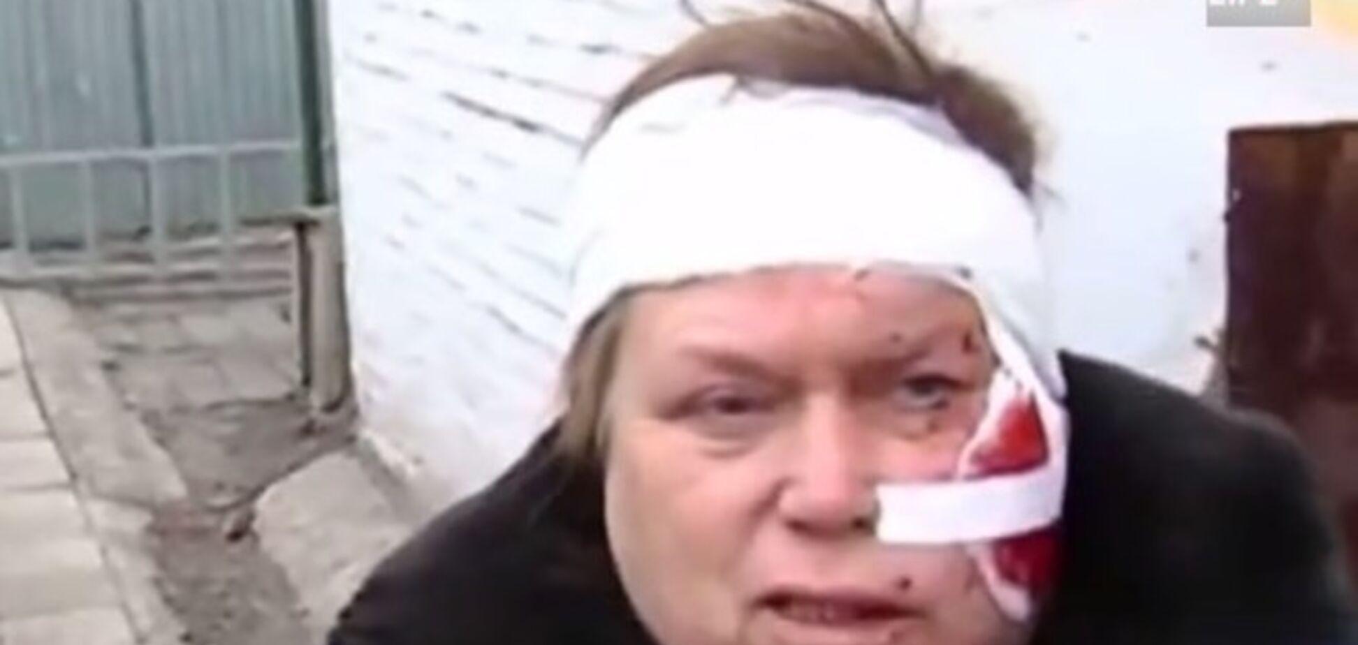 Поранені жителі Донецька визнали, що їх обстріляли бойовики 'ДНР'