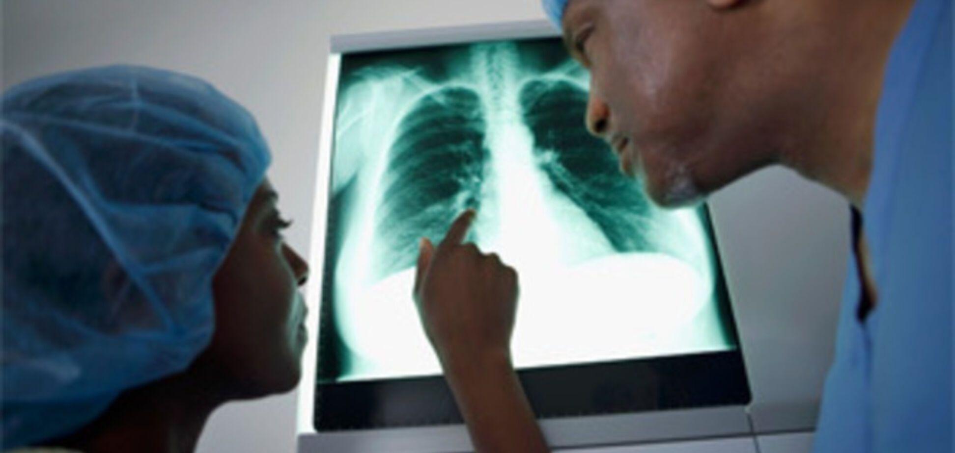 5 фактов о трансплантации органов, о которых вам не расскажут врачи
