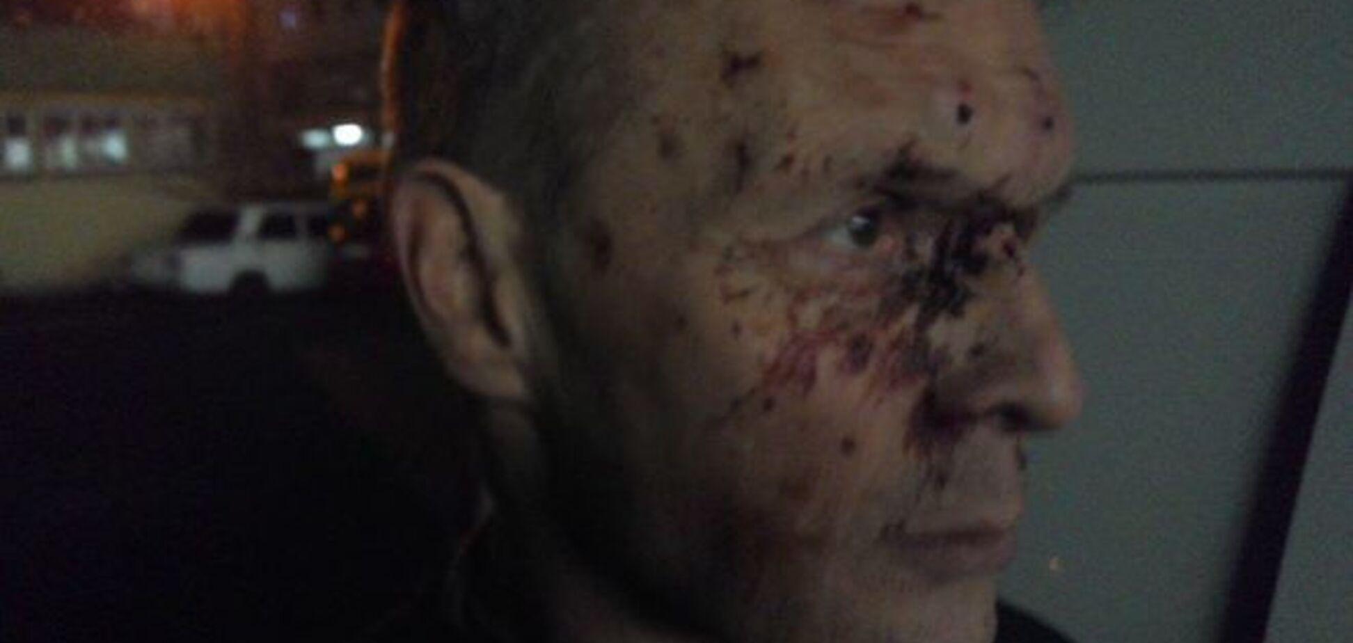 В Киеве мажор жестоко избил отца добровольца из 'Азова': опубликовано фото