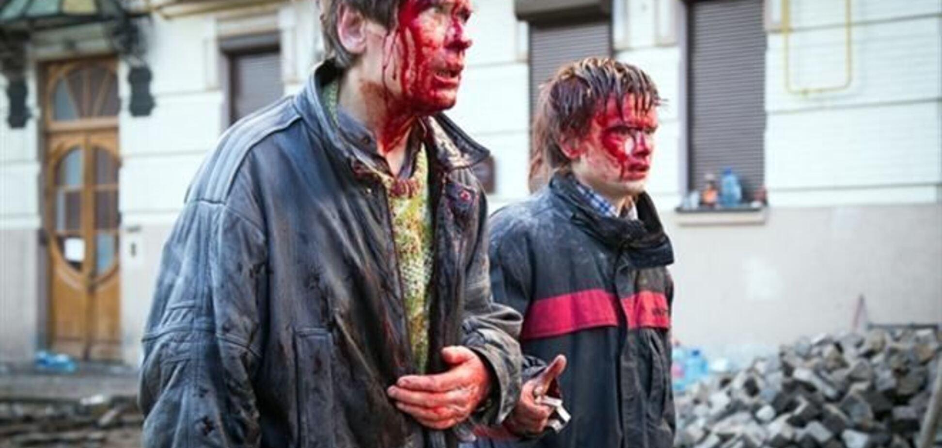 Избитые 18 февраля отец и сын, фото которых облетело мир, рассказали о жестокости 'Беркута'