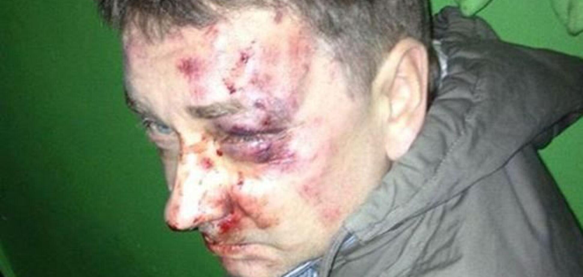 В Сумах жестоко избили журналиста