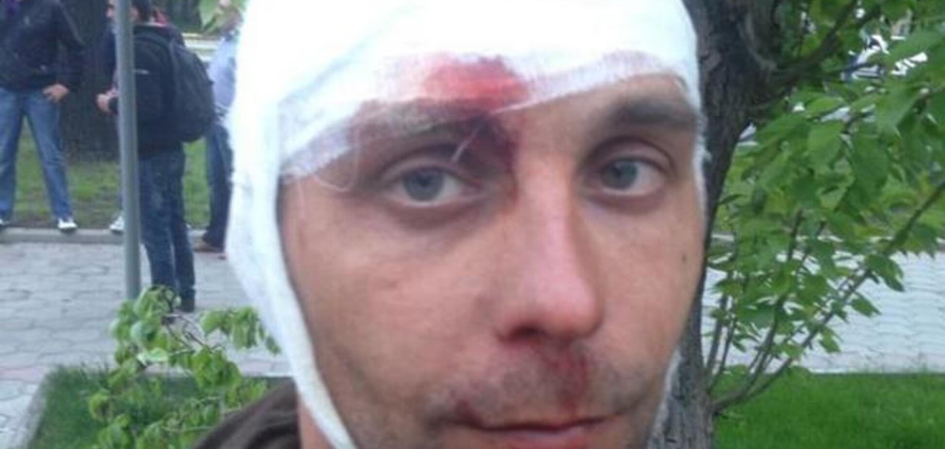 Во время столкновений в Донецке разбили голову журналисту