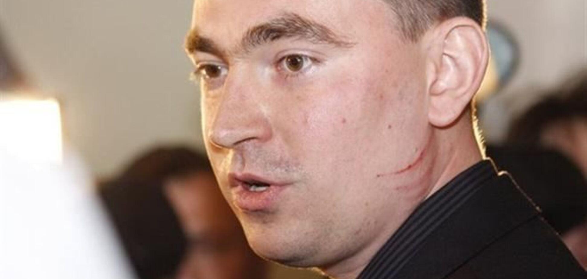 Комуністка Калетник роздряпала обличчя свободівцю Михальчишину