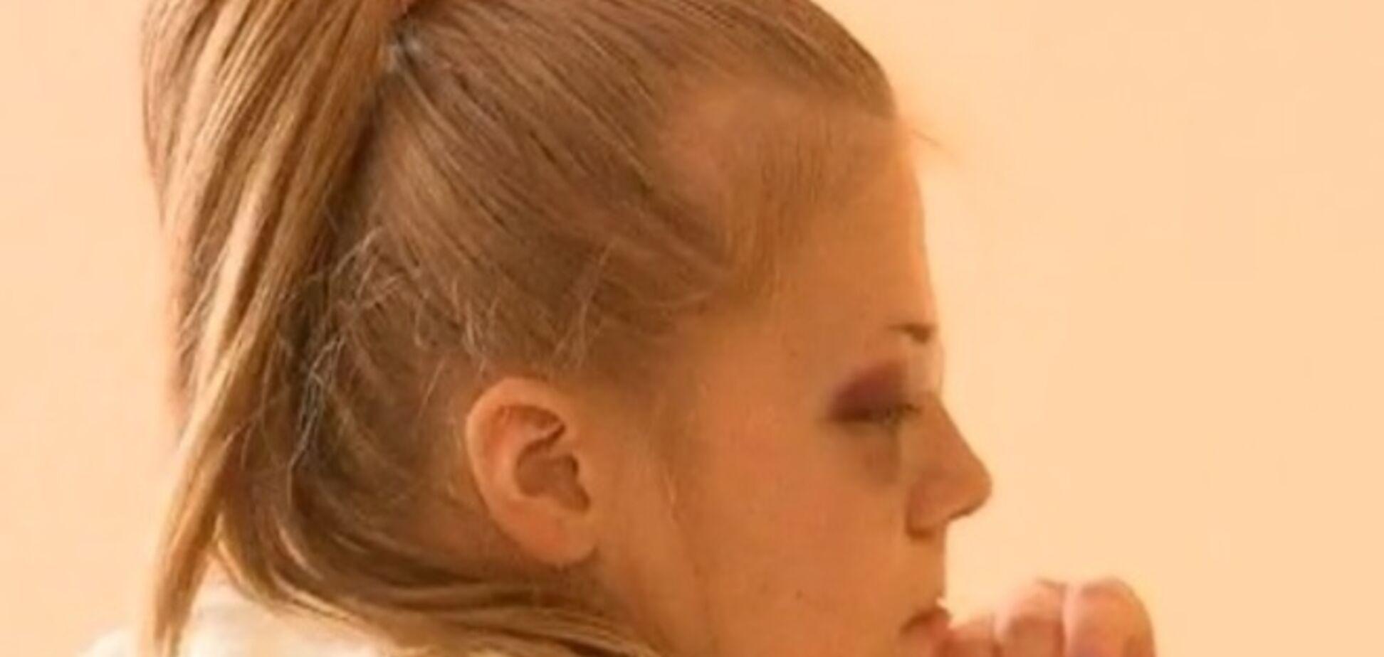 13-летнюю девочку, подстреленную на Ривненщине, везут в Одессу