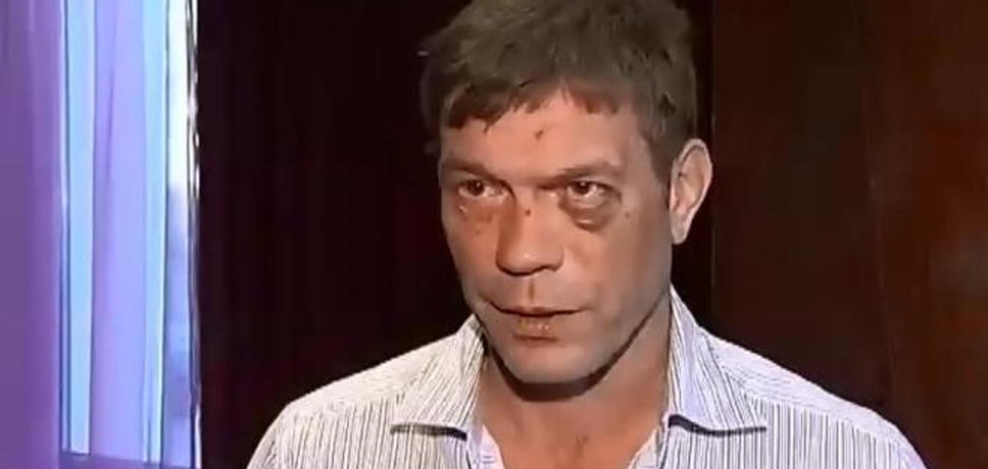 Царев в Луганске назвал себя 'главой Новороссии' и посетил клиническую больницу