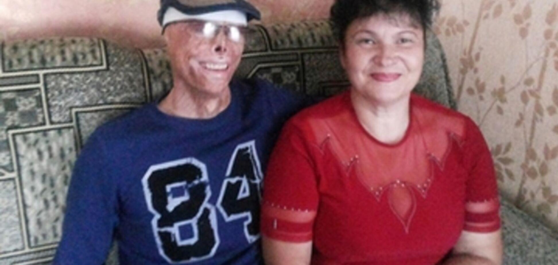 31-летний житомирянин, оставшийся после пожара инвалидом, стал успешным бизнесменом