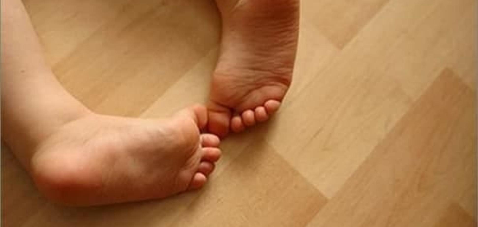 Вроджена клишоногість, причини і лікування