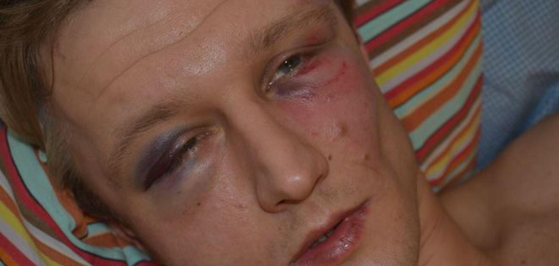 В Киеве неизвестные жестоко избили преподавателя НаУКМА
