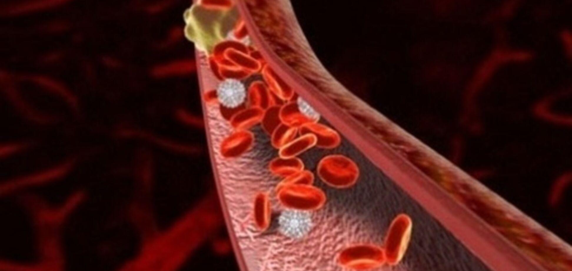 Почему отрывается тромб: исследуем симптомы и провоцирующие факторы