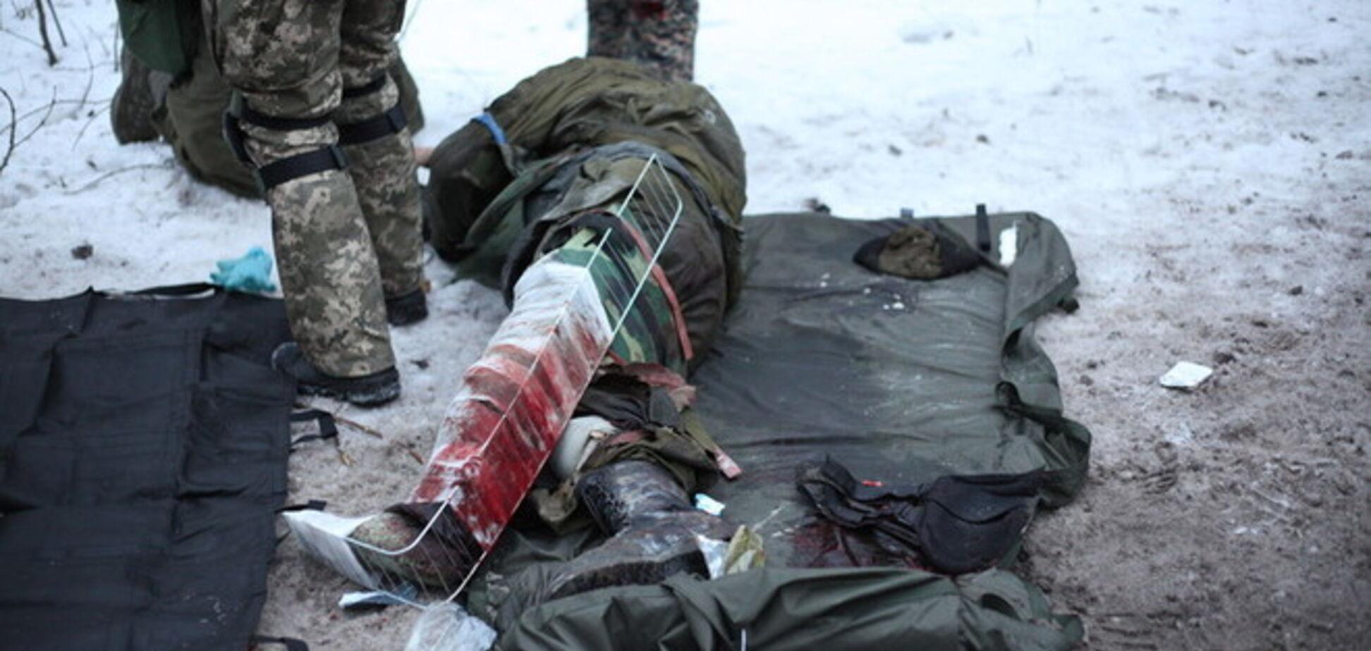 Спасение раненых 'киборгов': душераздирающие фото с передовой