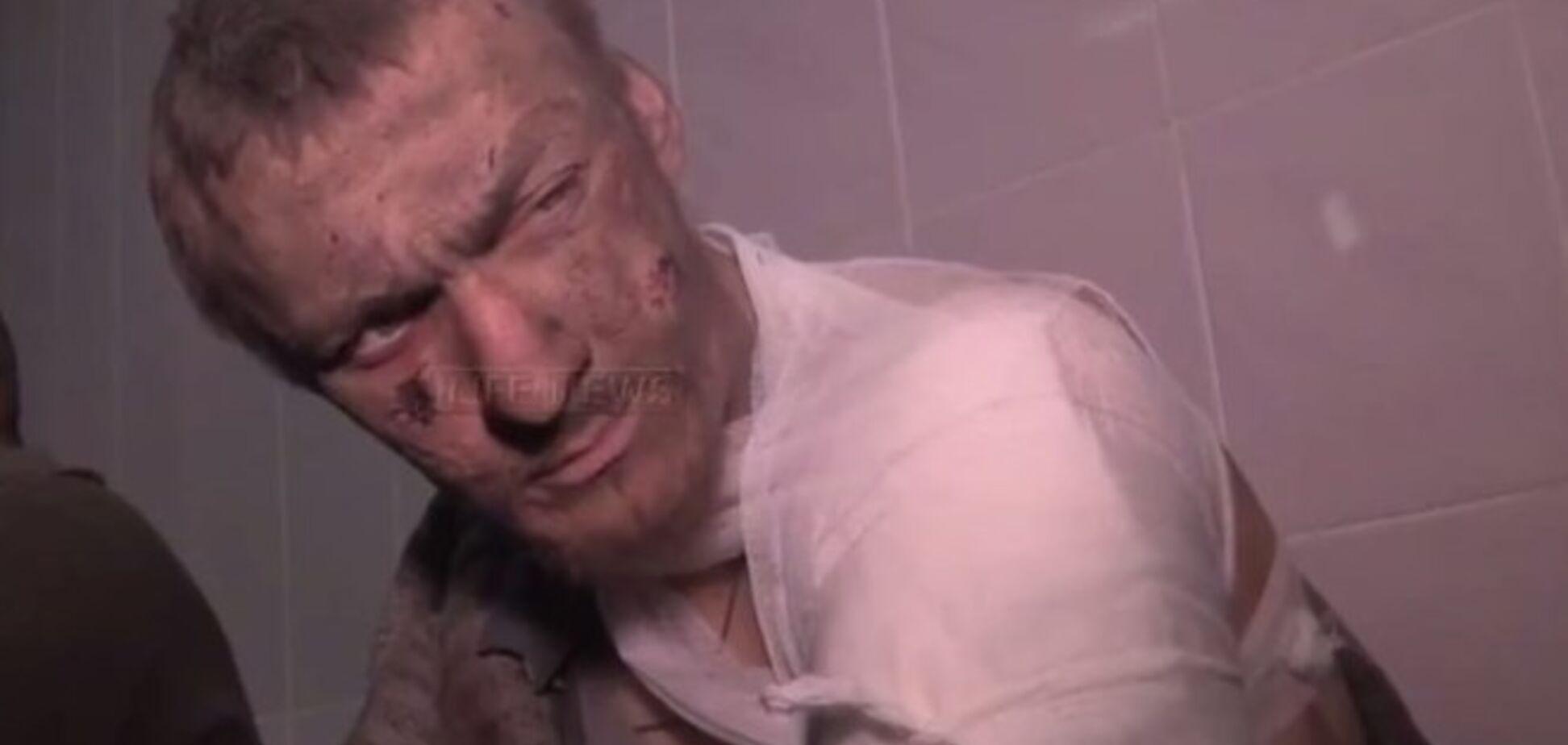 Пленный украинский военный достойно ответил на хамский допрос и провокации российского СМИ: видеофакт