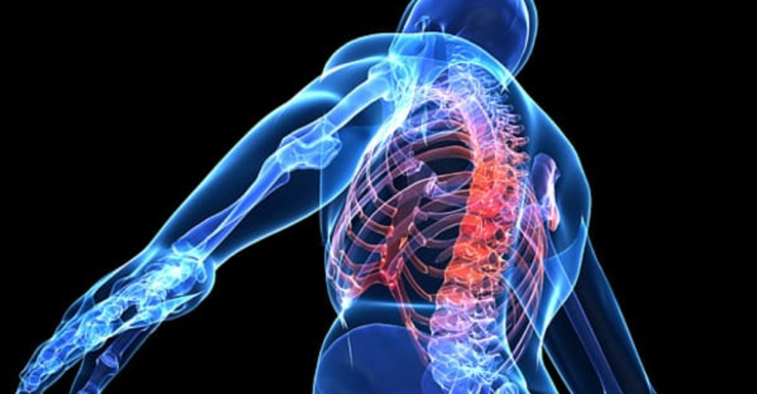 spinal cord injury patientsa - 858×536