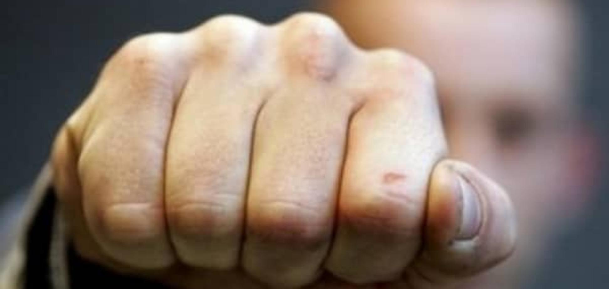 Шукайте жінку: Херсон шокувала 'романтична' бійка з вибухом гранати